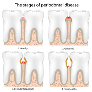 Illustration showing the stages of gum disease